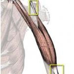 tendinitis2